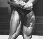 Arnold's legs